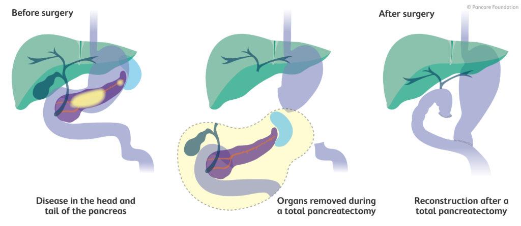 Total Pancreatectomy