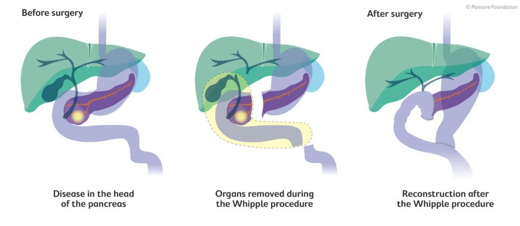 Whipple's Proceedure